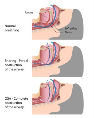 obstructive-sleep-apnea1-819x1024